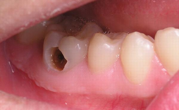 răng bị ê buốt