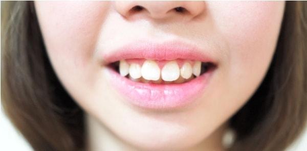 răng hô bọc răng sứ
