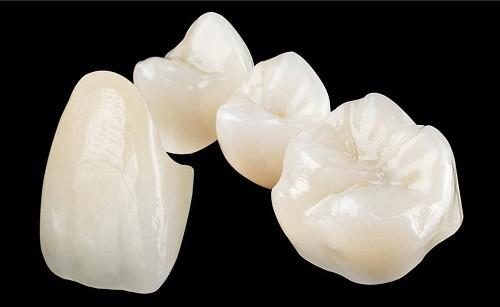 Vẻ đẹp từ răng sứ sử dụng được bao lâu sau khi làm - 1