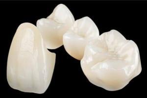 Răng sứ Venus là gì? Những kiến thức về răng sứ Venus bạn cần biết