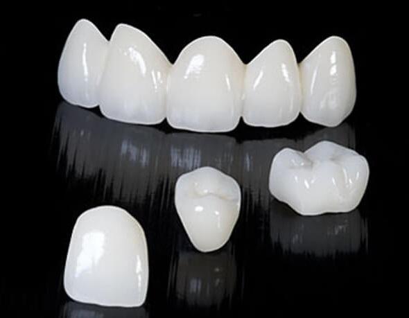 Răng sứ Venus là gì, Răng sứ Venus giá bao nhiêu
