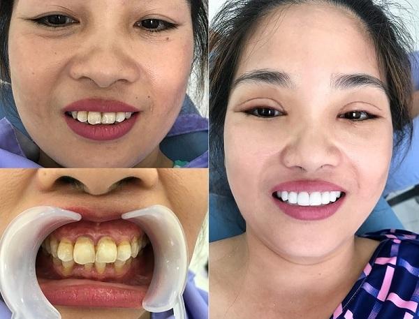 bọc răng sứ emax giá bao nhiêu,răng sứ emax giá bao nhiêu,răng toàn sứ emax giá bao nhiêu,bảng giá răng sứ emax,giá răng sứ emax