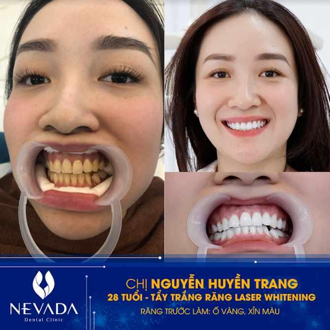 tẩy trắng răng được bao lâu,tẩy trắng răng bao lâu,tẩy trắng răng được lâu không,tẩy trắng răng duy trì được bao lâu,tẩy trắng răng giữ được bao lâu