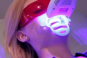 Tẩy trắng răng Laser có tốt không?