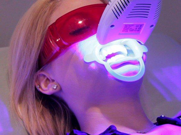 tẩy trắng răng có an toàn không, tẩy trắng răng là gì, tẩy trắng răng có hại không, tẩy trắng răng có hại gì không, tẩy trắng răng có hại không webtretho, máy tẩy trắng răng laser whitening, tẩy trắng răng laser có tốt không, tẩy trắng răng có tốt không, tẩy trắng răng an toàn, tẩy trắng răng hà nội, tay trang rang, tẩy trắng răng laser, dịch vụ làm trắng răng