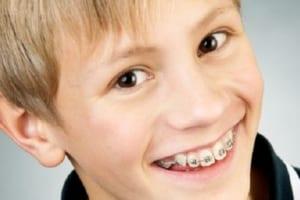 Thời gian niềng răng là bao lâu? Giải đáp cùng chuyên gia