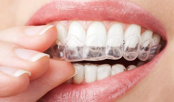 thời gian niềng răng,thời gian niềng răng tối thiểu,thời gian niềng răng bao lâu,thời gian niềng răng là bao lâu,rút ngắn thời gian niềng răng,thời gian niềng răng mất bao lâu,chi phí và thời gian niềng răng