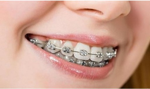 thời gian niềng răng, thời gian niềng răng tối thiểu, thời gian niềng răng bao lâu, thời gian niềng răng là bao lâu, rút ngắn thời gian niềng răng, thời gian niềng răng mất bao lâu, chi phí và thời gian niềng răng, niềng răng bao lâu thì tháo, niềng răng nhanh nhất là bao lâu, niềng răng nhanh nhất bao lâu, đeo niềng răng trong bao lâu, niềng răng khoảng bao lâu, niềng răng bao lâu thì nên có bầu