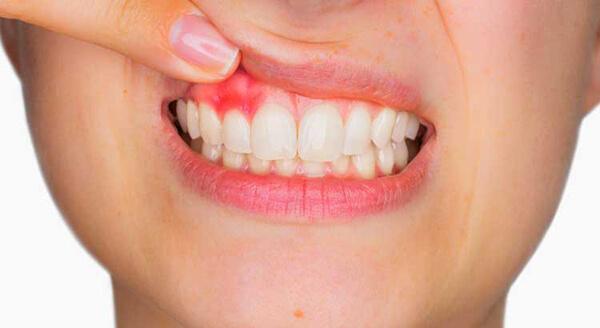 đông y gia truyền phú ân, thuốc trị sâu răng gia truyền phú ân, thuốc đặc trị sâu răng phú ân, thuốc chữa đau răng gia truyền, đông y gia truyền đặc trị sâu răng Phú Ân, đặc trị sâu răng Phú Ân, thuốc sâu răng Phú Ân