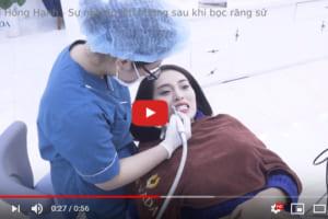"""Hành trình """"kiến tạo nụ cười – lên đời sự nghiệp"""" nhờ bọc răng sứ của ca sĩ Hồng Hạnh"""