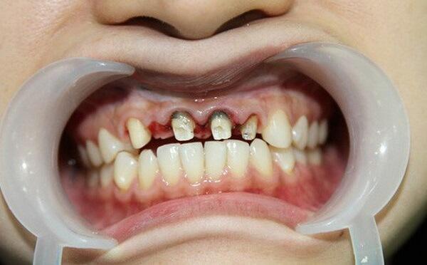 bọc răng sứ giá rẻ,bọc răng sứ giá rẻ tại hà nội,dán răng sứ giá rẻ,trồng răng sứ giá rẻ,răng sứ giá rẻ,làm răng sứ giá rẻ,làm răng sứ giá rẻ tphcm,răng sứ giá rẻ nhất,trồng răng sứ giá rẻ tphcm,bọc răng sứ giá rẻ hà nội,bọc răng sứ giá rẻ tại đà nẵng