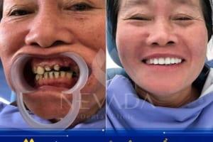 Cẩn trọng với dịch vụ bọc răng sứ giá rẻ tại Hà Nội hay HCM