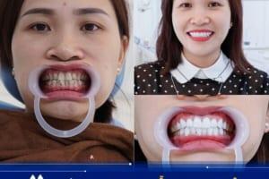 Bọc răng sứ mất mấy ngày thì xong 1 bộ răng đẹp hoàn chỉnh?