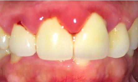 sưng lợi răng cửa, sưng nướu răng cửa, sưng nướu răng cửa hàm trên, sưng lợi hàm trên răng cửa, viêm lợi răng cửa, bị sưng lợi răng cửa, bị sưng nướu răng cửa, Cách chữa sưng nướu răng cửa, Cách chữa sưng lợi răng cửa