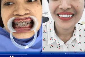 Có nên bọc răng sứ ngay bây giờ để đón Tết hay không?