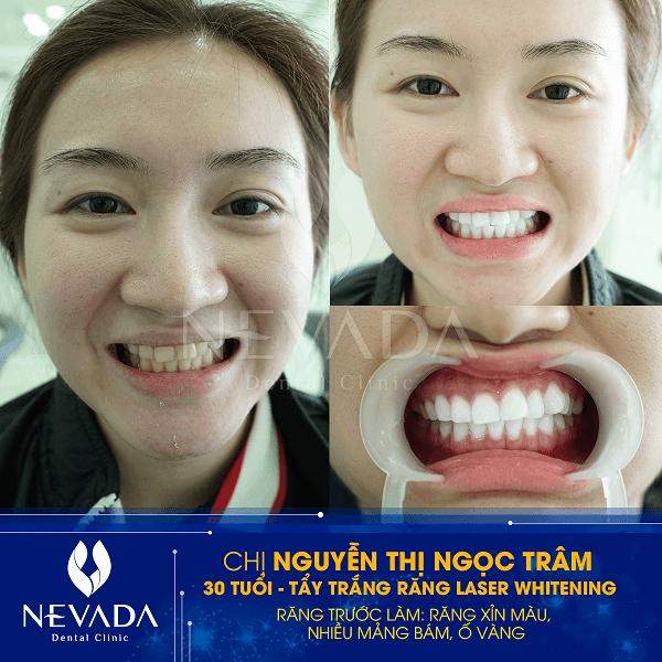 công nghệ tẩy trắng răng tốt nhất hiện nay, công nghệ tẩy trắng răng, công nghệ tẩy trắng răng mới nhất, công nghệ tẩy trắng răng hiện đại nhất, các công nghệ tẩy trắng răng