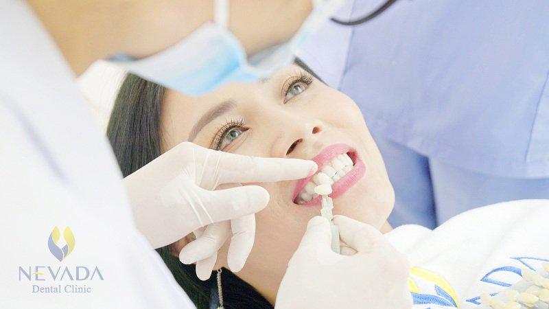 khuyến nại tẩy trắng răng