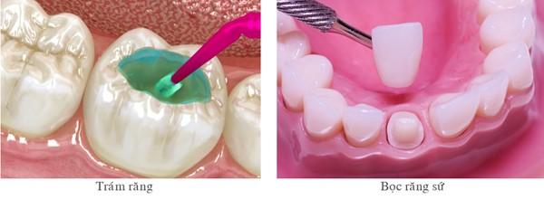 Nên trám răng hay bọc răng sứ cho răng sâu