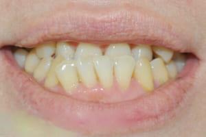 Răng quặp có ý nghĩa gì? Xem tướng người răng quặp ki bo có đúng không?