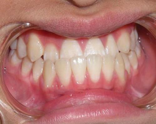 con gái răng quặp, răng hàm dưới quặp vào trong, răng hàm trên quặp vào trong, tướng răng quặp vào trong, răng thụt vào trong tướng số, chỉnh hình răng quặp vào, răng quặp, răng quặp ki bo, răng cửa quặp vào trong, chữa răng quặp, răng quặp có ý nghĩa gì, răng quặp là gì, xem tướng răng quặp, răng quặp là như thế nào, người răng quặp, niềng răng quặp, răng quặp vào trong, tướng răng quặp, đàn ông răng quặp, phụ nữ răng quặp, răng cụp vào trong, răng quặp có niềng được không, răng quắp vào, răng cụp, răng bị cụp vào trong, răng bị quặp vào trong