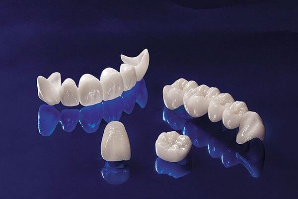 Giá bọc răng sứ nguyên hàm là bao nhiêu ?
