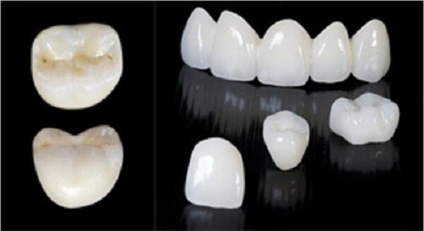 răng sứ cercon có tốt không, bọc răng sứ cercon có tốt không, làm răng sứ cercon có tốt không, tuổi thọ của răng sứ cercon, bọc răng sứ cercon là gì, răng sứ cercon giá bao nhiêu, răng sứ cercon ht giá bao nhiêu, răng sứ cercon sử dụng được bao lâu, bọc răng sứ cercon giá bao nhiêu, răng sứ cercon giá bao nhiêu tiền, trồng răng sứ cercon giá bao nhiêu, giá làm răng sứ cercon, răng sứ cercon giá rẻ, thẻ bảo hành răng sứ cercon, răng sứ cercon khuyến mãi, răng sứ cercon và zirconia, voucher làm răng sứ cercon, so sánh răng sứ cercon và zirconia, cách chăm sóc răng sứ cercon