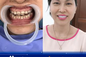 Bọc răng sứ Cercon là gì? Làm răng sứ Cercon có tốt không?