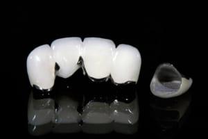 Răng sứ kim loại có tốt không? | Ý kiến đánh giá của chuyên gia