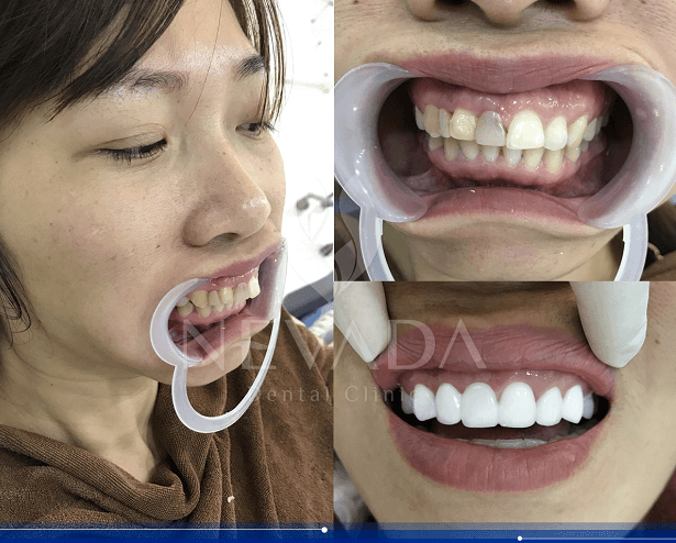 răng sứ kim loại,răng sứ kim loại có tốt không
