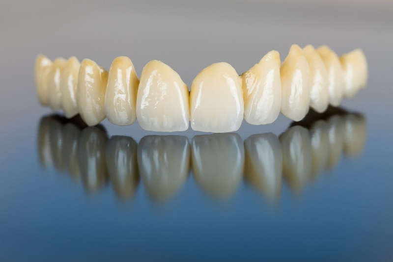 răng sứ kim loại mỹ,răng sứ kim loại mỹ có tốt không,răng sứ mỹ giá bao nhiêu ,giá răng sứ kim loại,răng sứ kim loại giá bao nhiêu,giá răng sứ kim loại thường