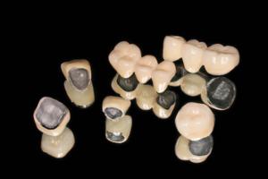 Răng sứ kim loại Mỹ có tốt không và có giá bao nhiêu?