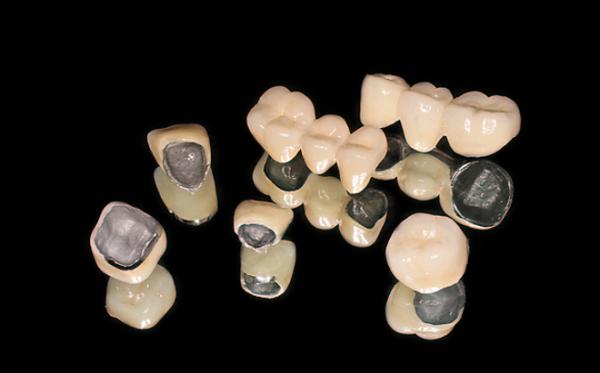 răng sứ kim loại mỹ, răng sứ kim loại mỹ có tốt không
