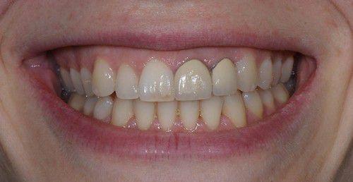 Răng sứ kim loại Mỹrăng sứ kim loại mỹ,răng sứ kim loại mỹ có tốt không,răng sứ mỹ giá bao nhiêu ,giá răng sứ kim loại,răng sứ kim loại giá bao nhiêu,giá răng sứ kim loại thường có tốt không