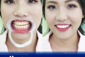 Tẩy trắng răng dịp Tết | Răng trắng tự nhiên, phú quý vô biên