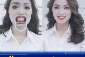 Nên tẩy trắng răng tại phòng khám nha khoa hay tại nhà?