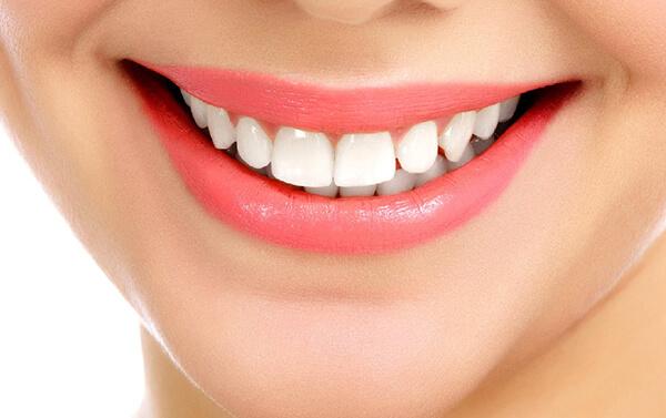 trám răng thưa,trám răng thưa có tốt không,trám răng thưa thẩm mỹ