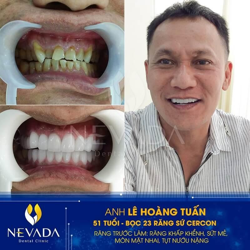giá bọc răng sứ cercon ht