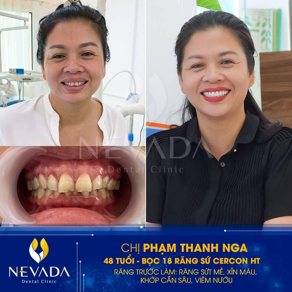 răng sứ cercon ht, răng sứ cercon ht và zirconia, làm răng sứ cercon ht, răng sứ cercon và cercon ht, răng toàn sứ cercon ht, răng sứ cercon ht là gì, răng sứ cercon ht có tốt không, bọc răng sứ cercon ht giá bao nhiêu, bảng giá răng sứ cercon ht, giá bọc răng sứ cercon ht