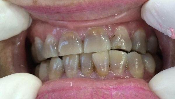 Răng bị nhiễm Tetracycline, Răng bị nhiễm kháng sinh