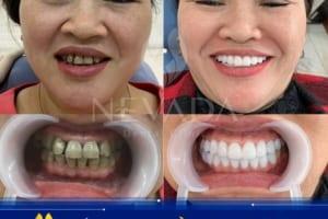 Răng bị nhiễm kháng sinh không thể tẩy trắng thì phải làm sao?