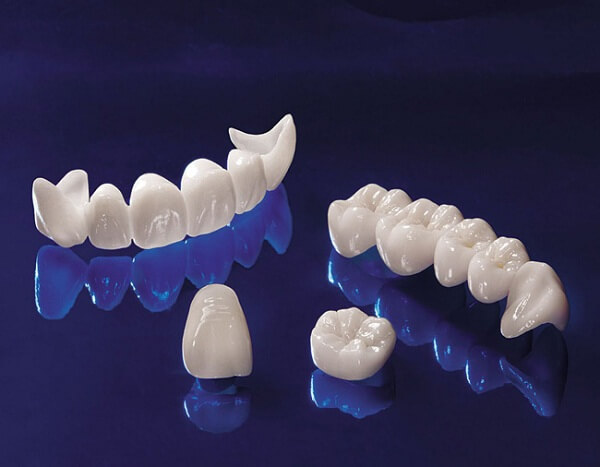 www.123nhanh.com: Bọc răng sứ Zirconia có chất lượng không?