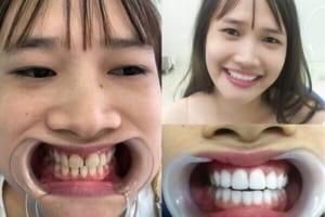 Răng sứ Zirconia là gì? Răng sứ Zirconia có tốt không?
