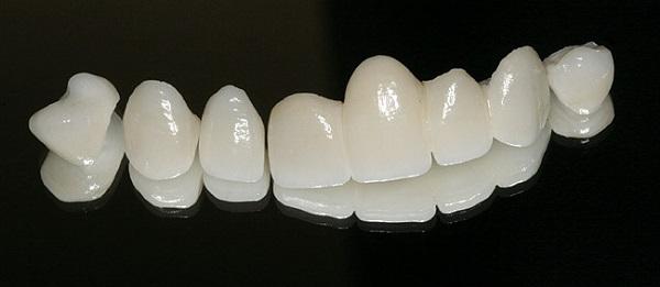 bọc răng sứ zirconia giá bao nhiêu tiền, giá bọc răng sứ zirconia, giá bọc răng sứ cercon zirconia, bọc răng sứ zirconia giá bao nhiêu, chi phí bọc răng sứ zirconia, răng sứ zirconia giá bao nhiêu, răng sứ zirconia giá rẻ, răng sứ zirconia giá, làm răng sứ zirconia, giá làm răng sứ zirconia, thẻ bảo hành răng sứ zirconia, làm răng sứ zirconia giá bao nhiêu, trồng răng sứ zirconia giá bao nhiêu, trồng răng sứ zirconia giá rẻ