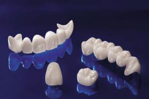 Cập nhật bảng so sánh các loại răng sứ HOT HIT hiện nay – Tham khảo ngay