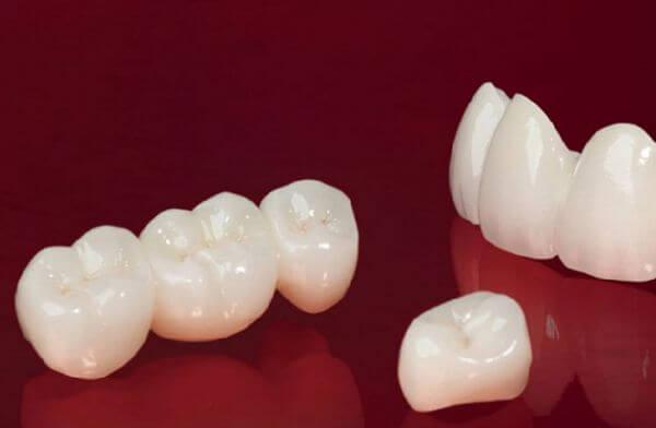 răng sứ cercon và zirconia, so sánh răng sứ cercon và zirconia, so sánh răng sứ cercon và ceramill, so sánh các loại răng sứ, ưu điểm của bọc răng sứ, ưu nhược điểm của các loại răng sứ, các dòng răng sứ hiện nay, so sánh răng sứ cercon và venus, so sánh răng sứ venus và ceramill, so sánh các loại răng toàn sứ