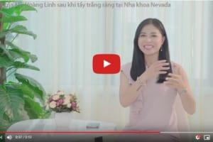 Bí quyết giữ gìn hàm răng trắng sáng của sao Việt