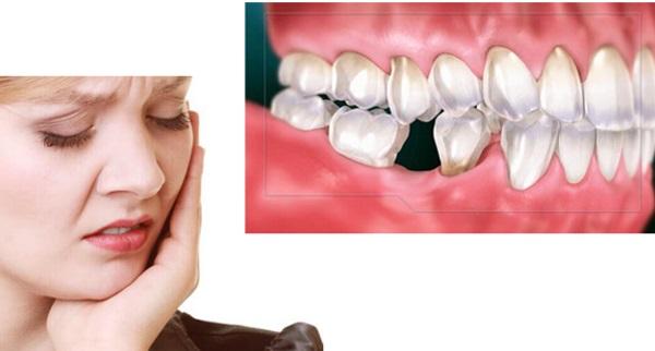 phẫu thuật tụt lợi giá bao nhiêu, nước súc miệng cho người bị tụt lợi, rang bi tut loi lam the nao, bị tụt lợi có chữa được không, bị tụt lợi, tụt lợi chân răng, răng bị tụt lợi, chữa tụt lợi bao nhiêu tiền, tụt nướu răng, nước súc miệng chữa tụt lợi, tụt lợi hở chân răng, tụt lợi hàm dưới, răng bị tụt lợi phải làm sao, bị tụt lợi phải làm sao, lợi bị tụt, bà bầu bị tụt lợi, bị tụt lợi chữa được không, cách chữa răng bị tụt lợi hiệu quả, các phương pháp điều trị tụt lợi, bị tụt lợi cách chữa, cách chữa bệnh tụt lợi, chữa tụt lợi ở đâu, chữa tụt lợi hết bao nhiêu tiền, chữa tụt lợi bằng đông y, chữa tụt lợi chân răng, chữa tụt lợi chân răng tại nhà, chữa tụt lợi webtretho, thuốc bôi chữa tụt lợi, ăn gì để chữa tụt lợi, cách chữa tụt lợi chân răng tại nhà, cách chữa tụt lợi chảy máu chân răng