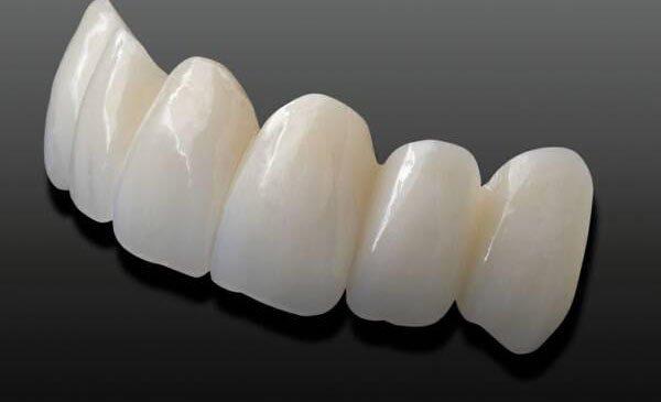 Bọc răng sứ bị hôi miệng, bọc răng sứ có bị hôi miệng không, bọc răng sứ có bị hôi miệng, tại sao bọc răng sứ bị hôi miệng, bọc răng sứ lâu ngày có bị hôi miệng không, tại sao bọc răng sứ lại bị hôi miệng, làm răng sứ bị hôi miệng