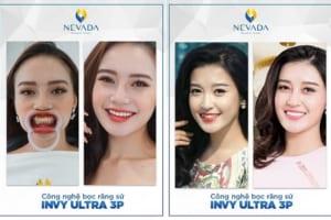 """CN Invy Ultra 3P – Đột phá trong công nghệ bọc răng sứ, """"thổi hồn"""" vào ngành thẩm mỹ nha khoa"""