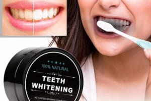 Tẩy trắng răng bằng than hoạt tính – Hiệu quả nhưng liệu có an toàn cho răng?